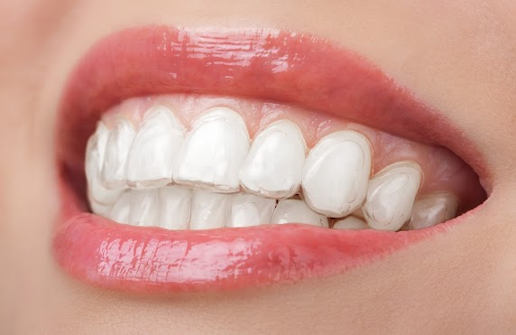 This is the image for the news article titled Best Time of Year To Get Invisalign