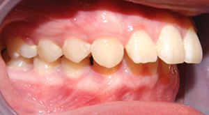 upper-front-teeth-protrusion