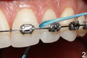 flossing-with-braces